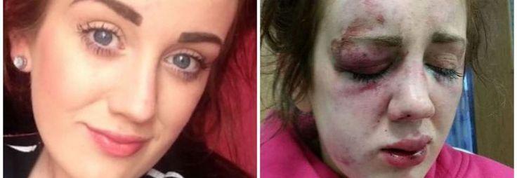 LONDRA Picchiata a sangue durante una festa di compleanno, ma per lei non c'è giustizia. Il caso arriva daGalles del nord, Regno