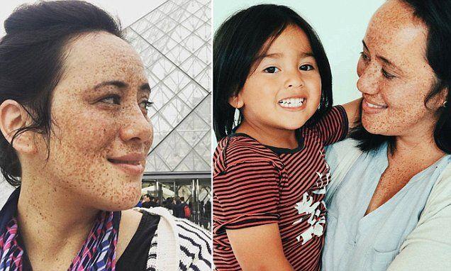 Melbourne mum embraces freckles after her son loves his