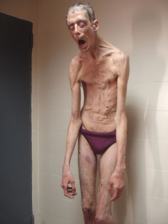 Javier Botet - actor with Marfan Syndrome
