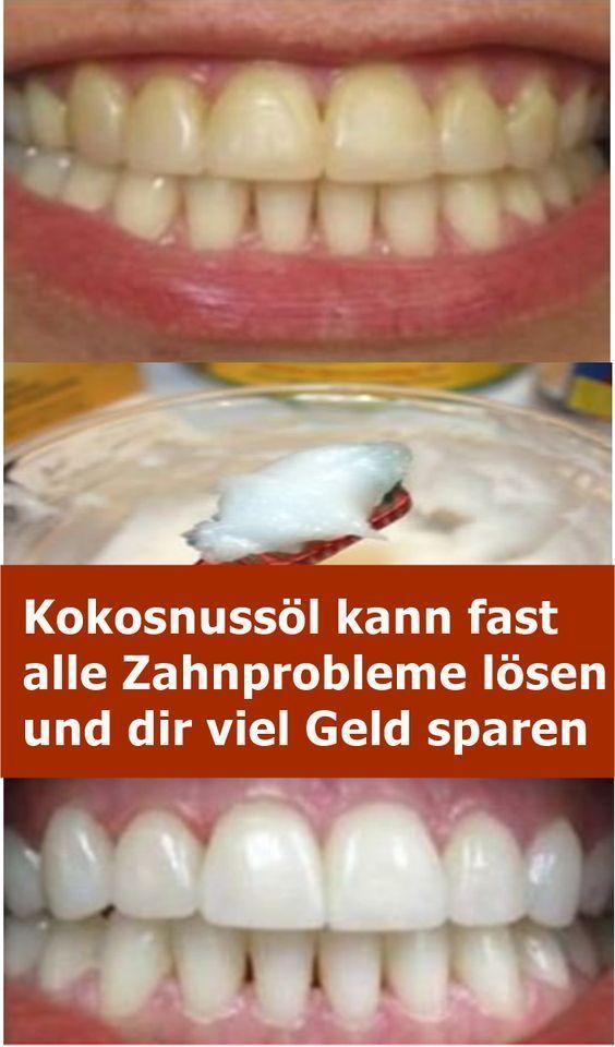Kokosnussöl kann fast alle Zahnprobleme lösen …