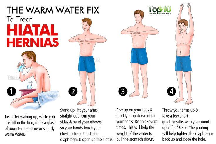 hiatal hernia warm water fix