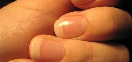 Strong healthy nails
