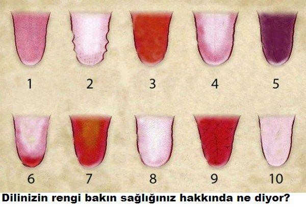 Dilinizin rengi sağlığınız hakkında ne diyor