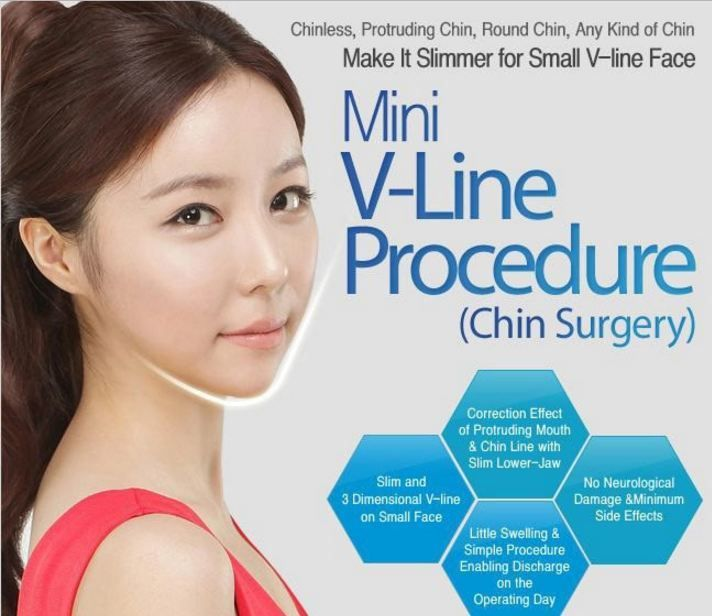 Chin Reduction Surgery - Chin Implant Before and After Images | The Line