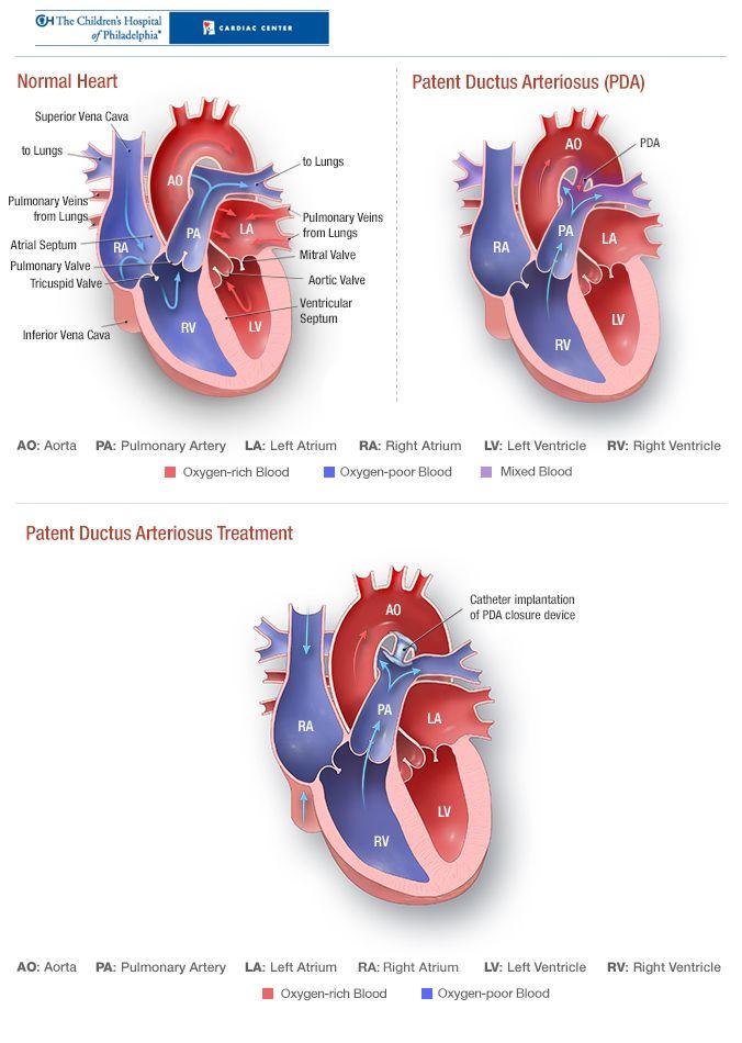 50 best Patent Ductus Arteriosus (PDA) images on Pinterest | Nicu ...