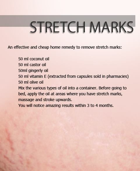 DIY - Home Remedy for Stretch Marks-  I only ended up with one stretch mark but I might try this!
