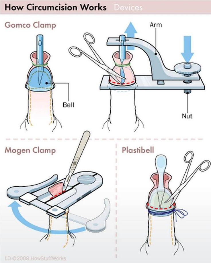 Doctors that tell you it's just a snip are lying; also there is no such thing as a no cut method   Plastibell   http://www.drmomma.org/2009/08/plastibell-infant-circumcision.html?m=1  http://www.savingsons.org/2012/03/plastibell-lie.html?m=1  http://www.drmomma.org/2010/05/the-perils-of-plastibell-circumcision.html?m=1  Gomco  http://www.drmomma.org/2011/01/neonatal-circumcision-video-for.html?m=1  Morgen   http://m.youtube.com/watch?v=tHgLxdH2ric_uri=%2Fwatch%3Fv%3DtHgLxdH2ric