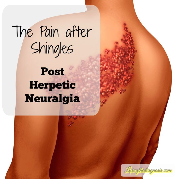 Pain after Shingles Post Herpetic Neuralgia NEW