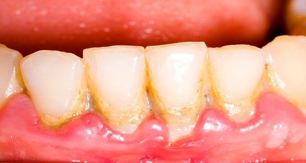 Take One Tablespoon Every Day And Save Your Teeth - Remove Plaque In A Very Simple And Natural Way