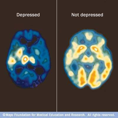 A PET scan can compare brain activity during periods of depression (left) with normal brain activity (right). An increase of blue and green colors, along with decreased white and yellow areas, shows decreased brain activity due to depression. http://www.mayoclinic.com/health/medical/IM00356