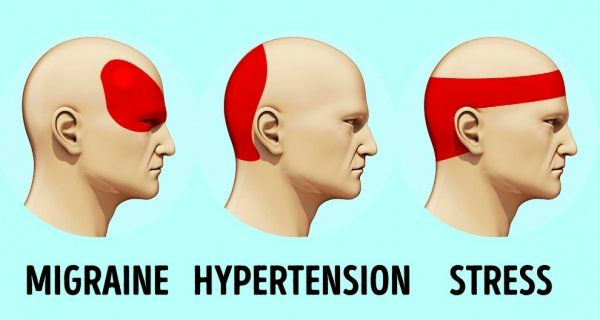Thanks to muscle tension and/or vascular imbalance, a sharp, throbbing or dull pain in the form of a headache or