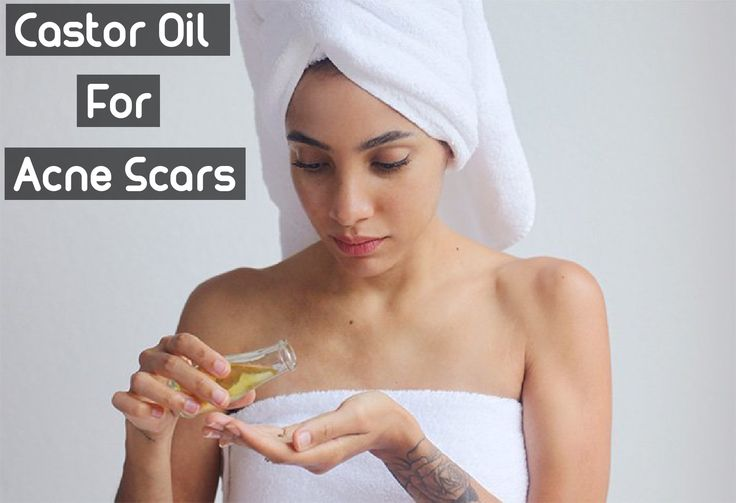 Castor Oil for Acne Scars: Treating Your Skin Problems Gently