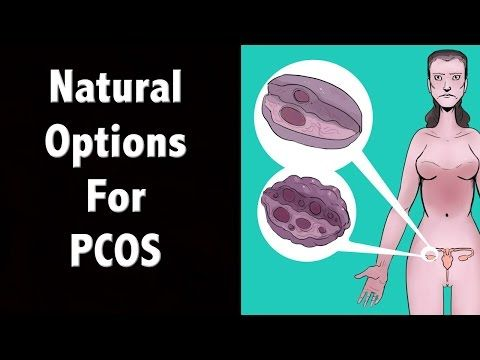 Natural PCOS Treatment Options - Polycystic Ovary Syndrome - YouTube