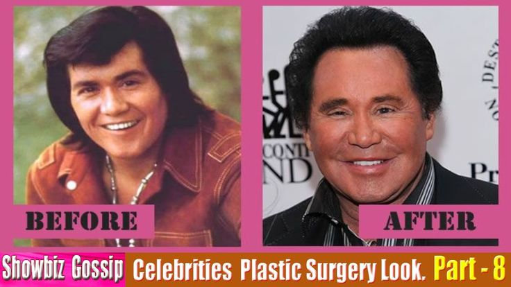 101 Celebrities Plastic Surgery Before and After Look. (71-80) | Part - 8.