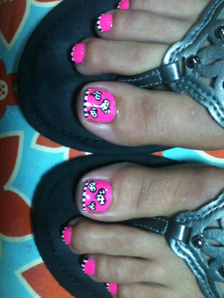 Pink - Black - White - Hearts - Polka Dots - Stripes - Toe Nail Design