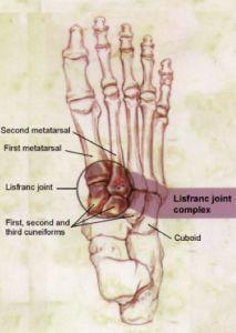 What is a Lisfranc Foot Injury? http://www.dralexjimenez.com/lisfranc-injuries-uncommon-foot-injury-athletes/