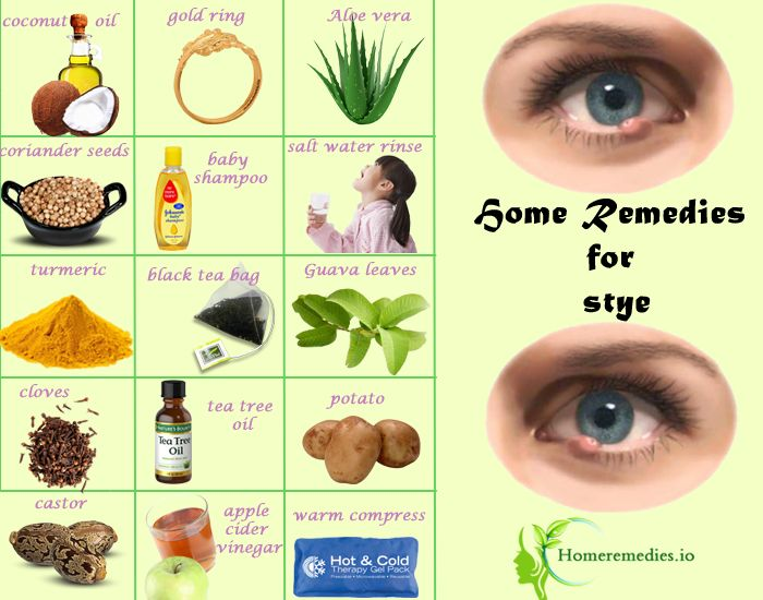 Get rid of Styes under eyelids with these Home Remedies for Stye. Natural ways to prevent styes in your eyes. Best Stye Treatment to heal Stye pain quickly.