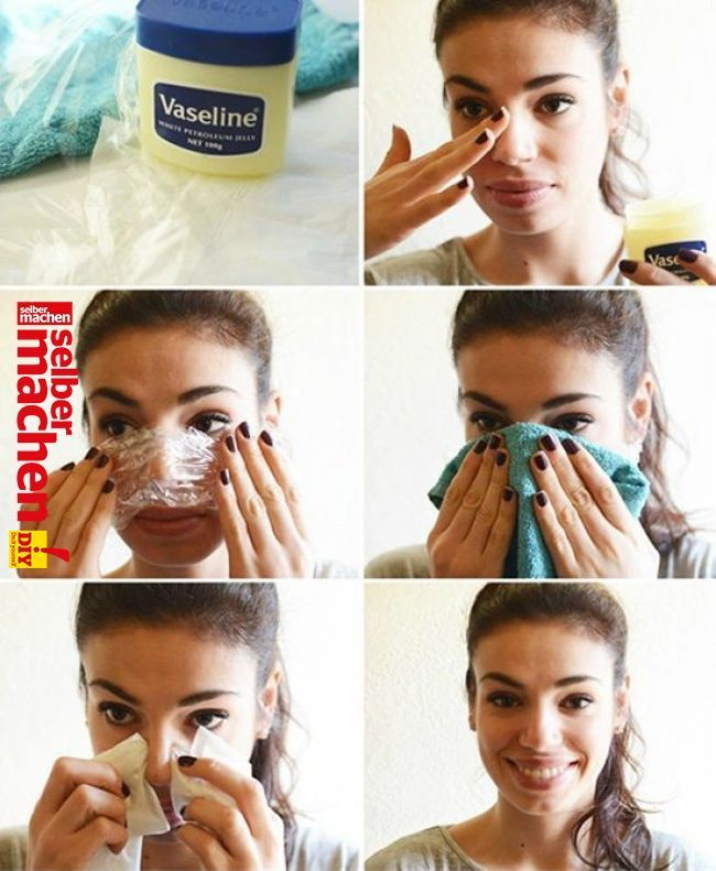 14 Tips to Avoiding and Controlling Blackheads Naturally – #Backing #Blackheads #Messessing #Natural # T … – http://venue-toptrendspint.jumpsuitoutfitdressy.tk