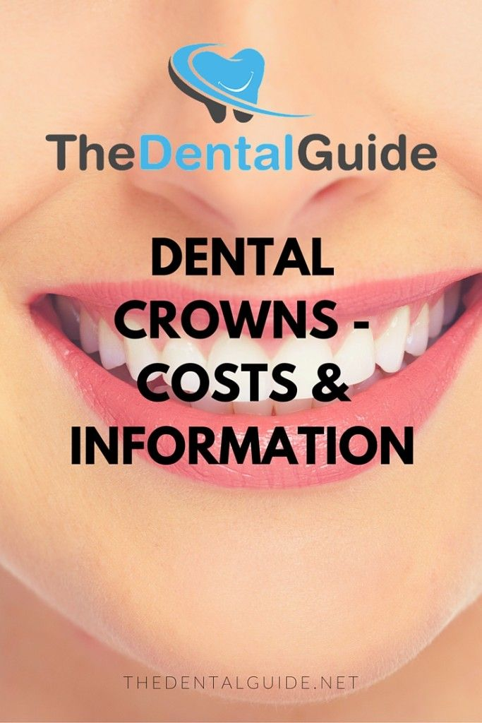 Dental Crowns - Costs & Information - The Dental Guide http://www.thedaviedentist.com/home
