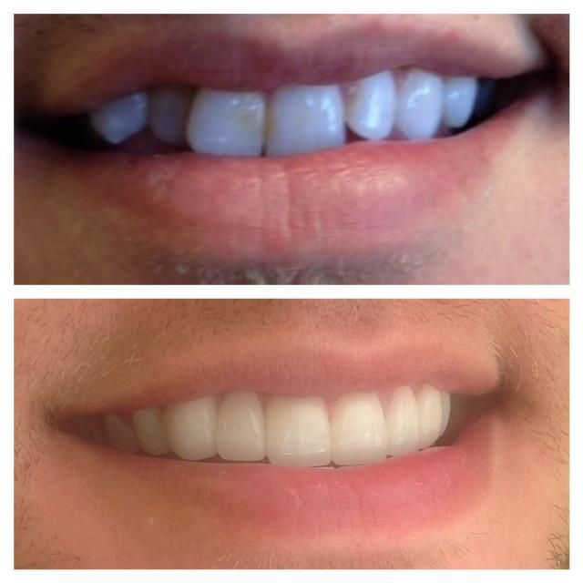 perfect smile veneers для мужчина