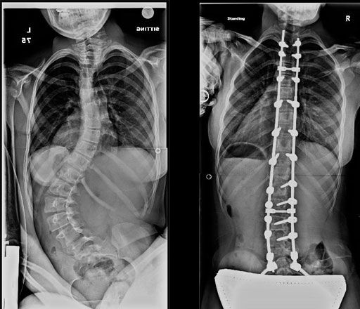 24 Best Images About Scoliosis On Pinterest Yoga Poses