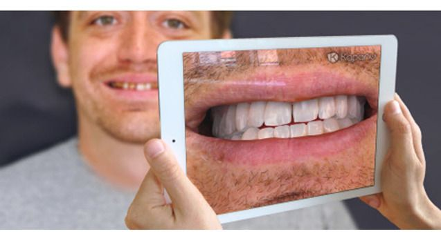 Utilizan la #realidadaumentada para facilitar el proceso de la reconstrucción dental | #Odontología |  #esalud