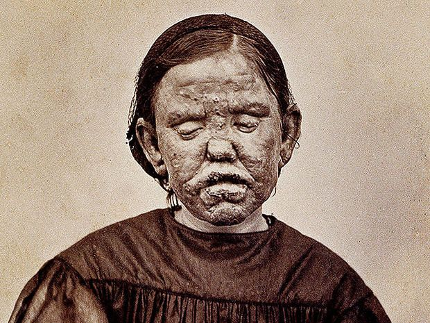 "Leprosy:This 1867 photograph shows a woman with a form of leprosy known at the time as ""elephantiasis des Grecs."" It first appeared in a French medical text published in 1868, ""Clinique photographique de l'hospital Saint-Louis."" Three years later, in 1871, this dreaded disease - which affects the eyes and causes enlargement of various parts of the body - was found to be caused by a bacterium."