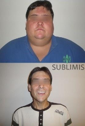 Antes y despues de una cirugia de banda gastrica. Cirugia realizada en Cordoba, Argentina por especialistas de Sublimis.
