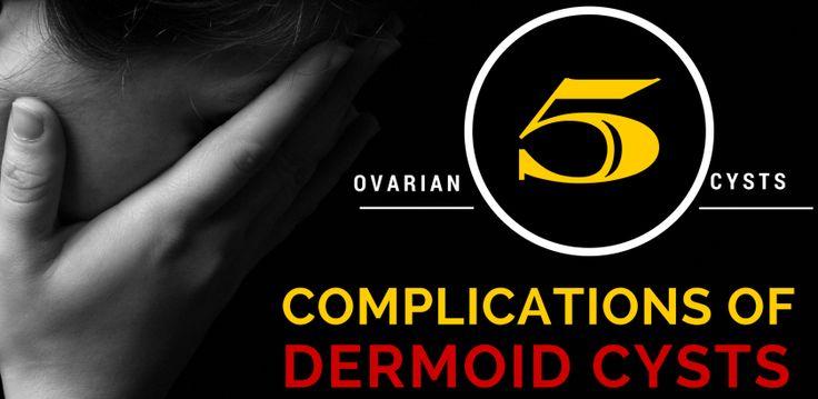 The 25+ best Complex ovarian cyst ideas on Pinterest ...