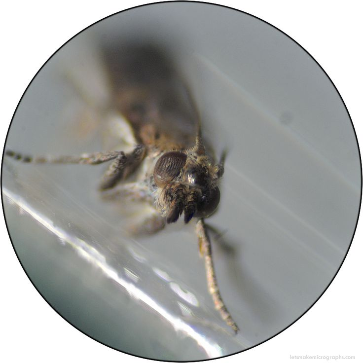 Facial detail of a live moth, hatched from the seeds of an Acacia plant after 20 days.  This is the moth whose dust I showed you on Monday. Look at that super cool proboscis and the cute puff of scales on its head, aww!