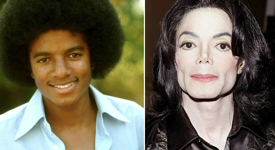 Check out MJ from Celebrity Plastic Surgery Fails