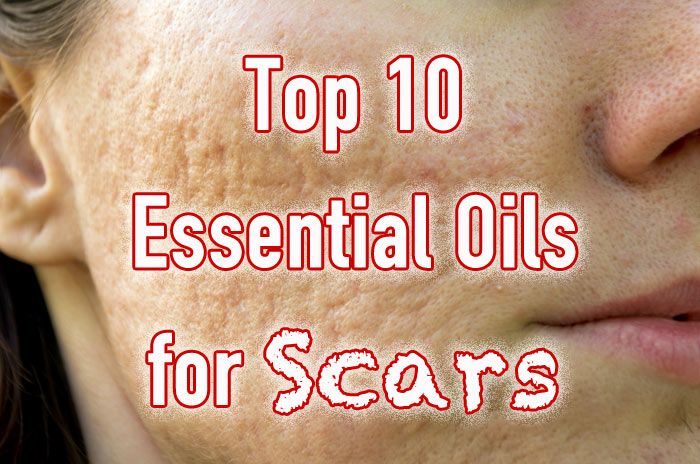 Essential oils for scars include Lavender, Helichrysum, Carrot seed, Cedarwood, Geranium, Rose absolute, Patchouli, Neroli, Myrrh and Frankincese.
