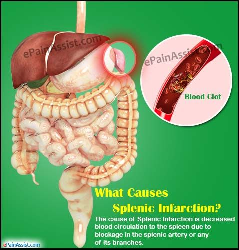 What is Splenic Infarction? Read: http://www.epainassist.com/abdominal-pain/spleen/what-causes-splenic-infarction-and-how-is-it-treated
