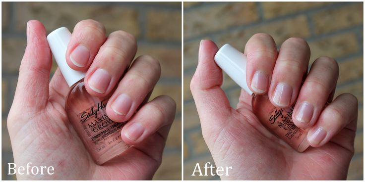 Review: Sally Hansen Maximum Growth Daily Nail Treatment | Sally ...
