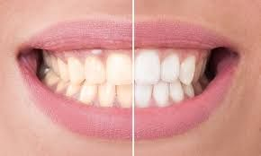 What Is Meant By Teeth Bleaching Procedure - http://emergencydentalcaretips.com/what-is-meant-by-teeth-bleaching-procedure/ Learn about teeth bleaching cost teeth whitening natural teeth whitening laser teeth whitening methods teeth whitening dentist teeth whitening prices professional teeth whitening near me in office teeth whitening