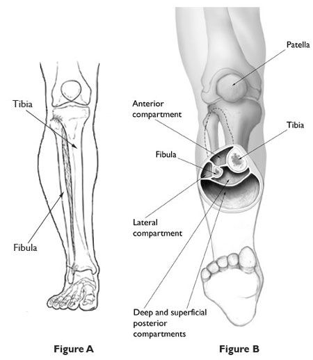 Compartment Syndrome -OrthoInfo - AAOS