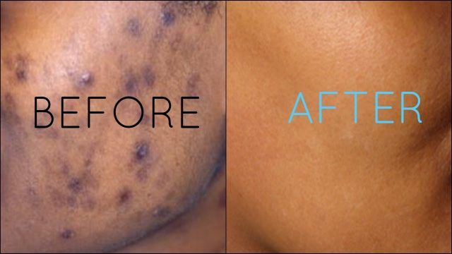 awesome top 6 ways to get rid of Brown Spots on Skin
