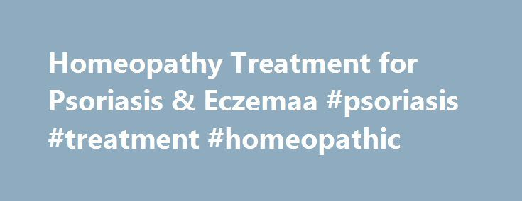 Homeopathy Treatment for Psoriasis & Eczemaa #psoriasis #treatment #homeopathic  # Inner Health Natural Health and Healing Articles Skin Diseases Plaque Ps