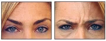 Eliminación de arrugas de la frente   Medicina Estética Clinica en Bogotá  031-300-4683