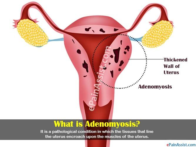 What is Adenomyosis?