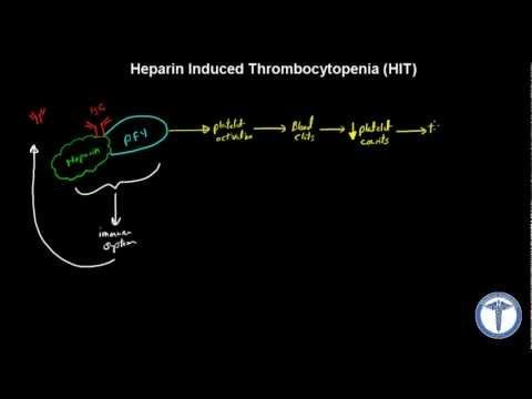 Heparin Induced Thrombocytopenia Explained - MADE EASY - YouTube