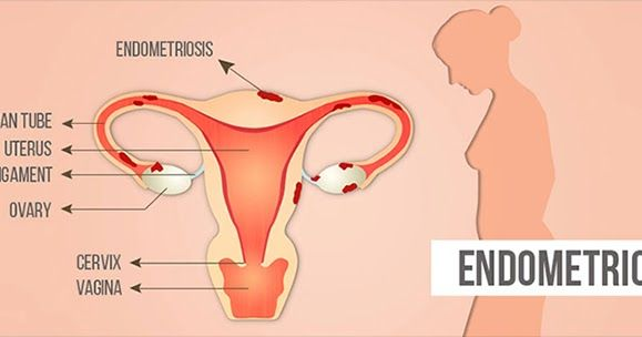 Endometriosis #Ayurvedic #Treatment & #Diet to #Avoid #Surgery  Women are #dealing with many #health #issues, among them #endometriosis is one. It is a serious health issue a #women #faces. Endometriosis is a #painful disorder that lines inside #uterus. Some women experience mild, moderate to severe symptoms of endometriosis. It commonly involves #ovaries, #fallopian #tubes and #tissue lining of #pelvis.