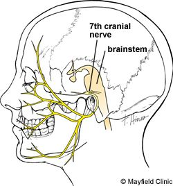 Facial twitch or hemifacial spasm (HFS), is an involuntary twitching or contraction of the facial muscles on one side of the face. Symptoms, causes, diagnosis, treatment