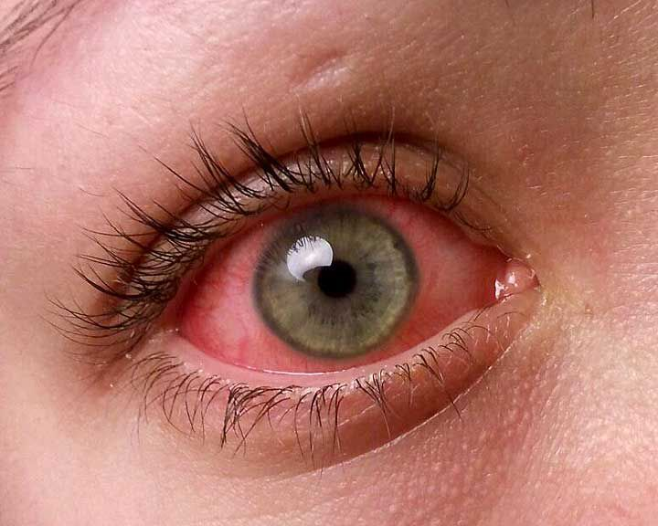 ink eye or conjunctivitis is among the most common eye problems. Here's everything you need to know about it, from causes to cure is here.