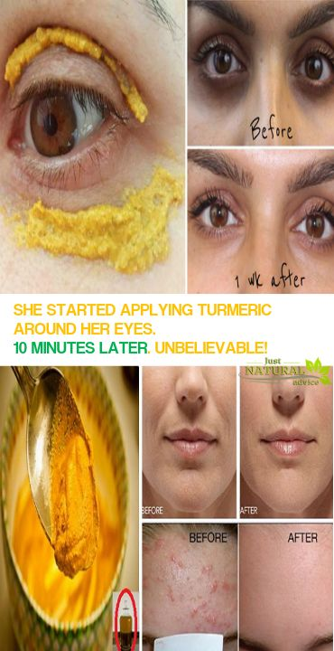 We can easily say that turmeric is one of the healthiest and most powerful spices