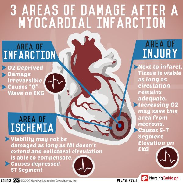 Areas of Damage after Myocardial Infarction - Nursing Guide Mobile