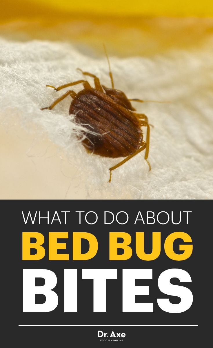 Ways To Treat Bed Bugs