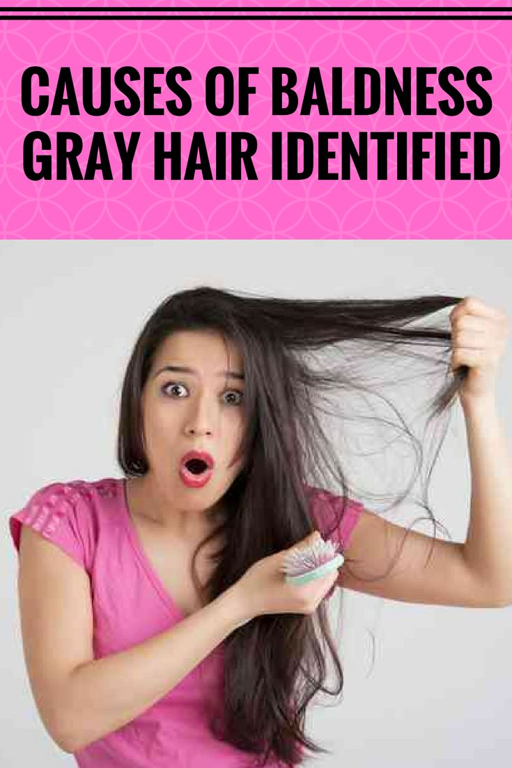 Causes of baldness, gray hair identified .,