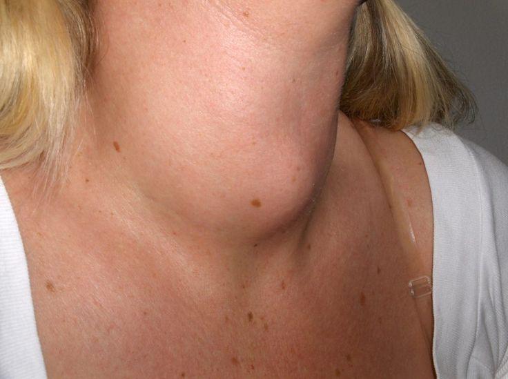 Sintomas da Tireoide: saiba como identificar e tratar
