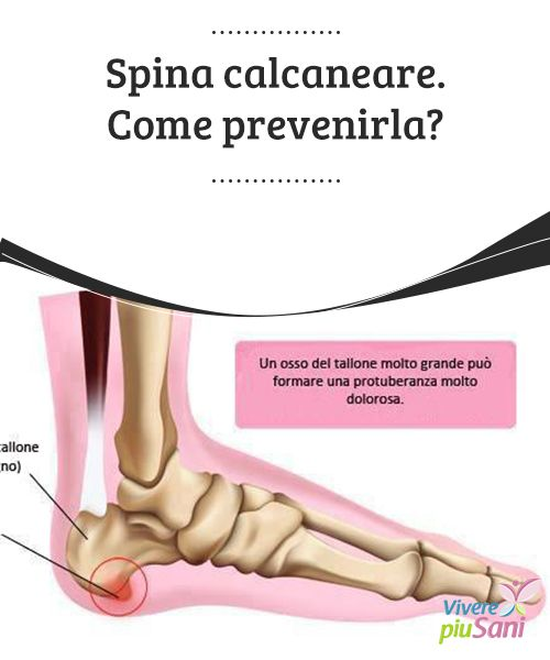 Spina #calcaneare. Come prevenirla?   #Spina calcaneare: cos'è e come #prevenirla.